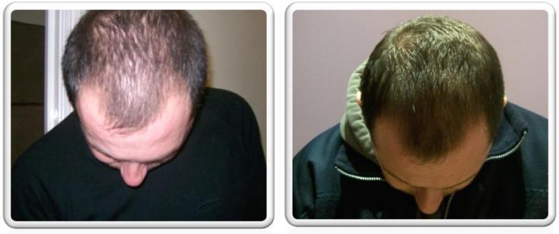 Средство для роста волос до и после фото